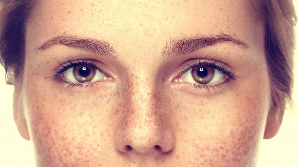 Acercamiento de los ojos, las mejillas y la nariz de una joven pecosa