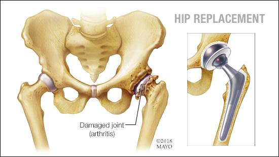 a medical illustration of a hip joint replacement for a hip joint damaged by arthritis