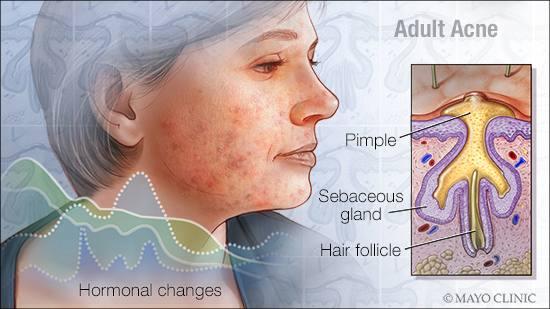 Ilustración médica del acné en adultos