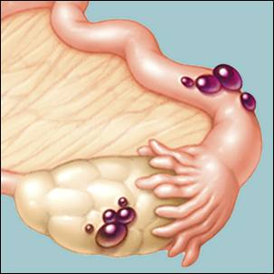 a medical illustration of endometriosis