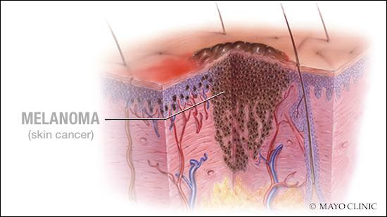 a medical illustration of melanoma