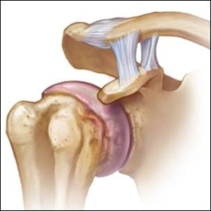 a medical illustration of shoulder joint arthritis