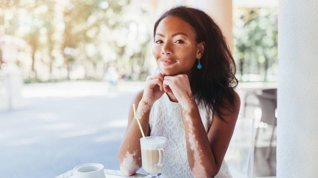 Una joven con vitiligo en la cara y los brazos toma café en una terraza