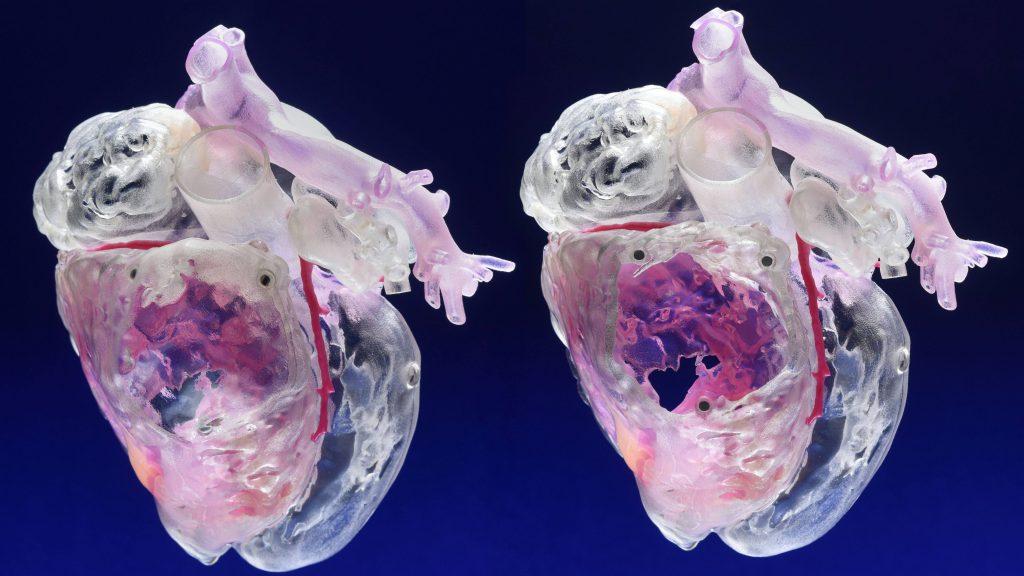 Modelo tridimensional del corazón