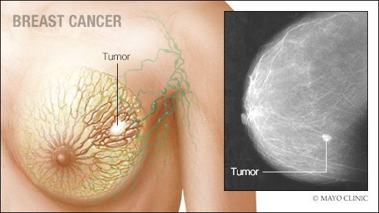 a medical illustration of breast cancer