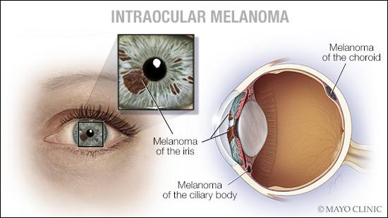 a medical illustration of intraocular melanoma