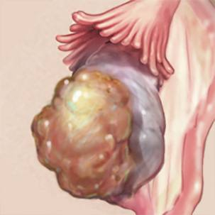 a medical illustration of ovarian cancer