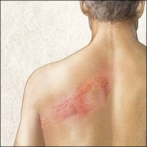 a medical illustration of shingles