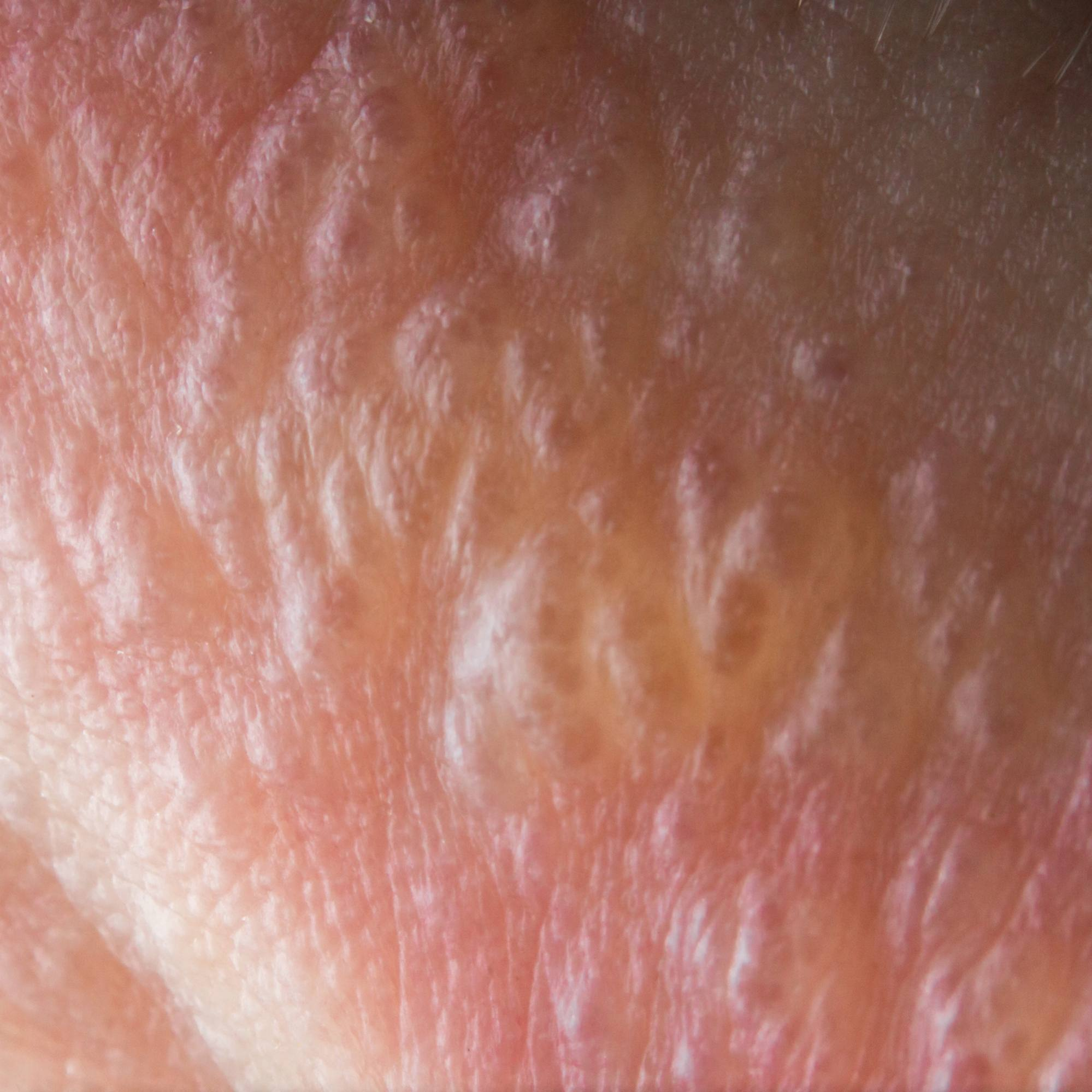 close up of swollen, inflamed poison ivy sore on skin