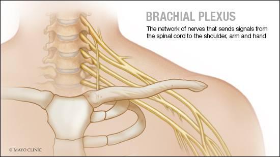 Ilustración médica del plexo braquial