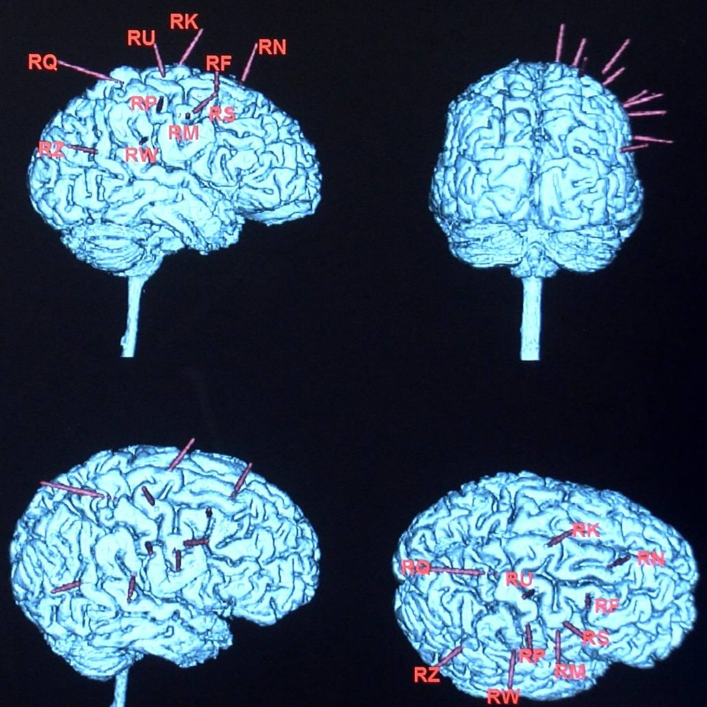 epilepsy brain scans of patient Chris White