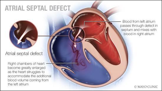 Ilustración médica del defecto del tabique auricular