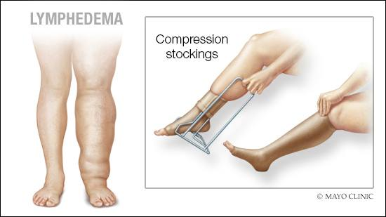 a medical illustration of lymphedema in the leg and the application of compression stockings