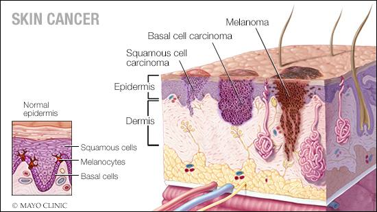 a medical illustration of normal skin and three types of skin cancer - squamous cell carcinoma, basal cell carcinoma and melanoma