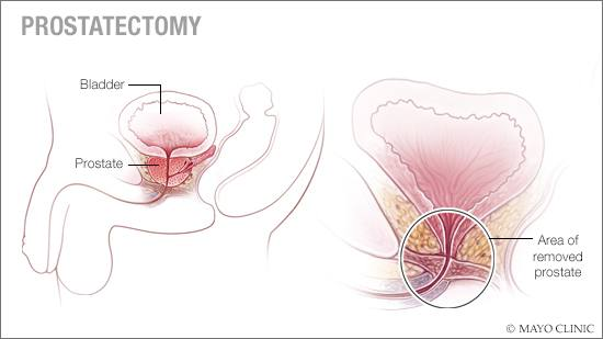 a medical illustration of prostatectomy