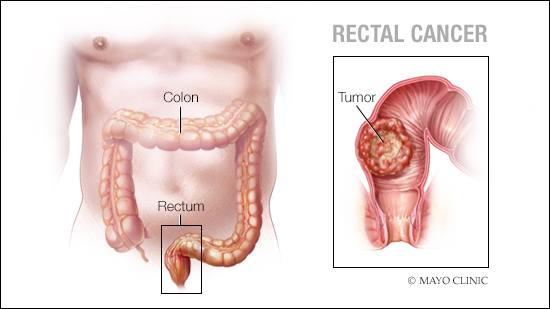 a medical illustration of rectal cancer