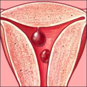 a medical illustration of uterine polyps