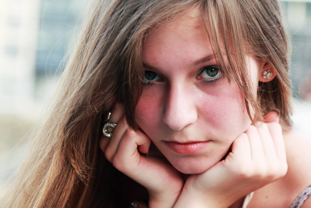 a close-up of a teenage girl with acne on her forehead, with her chin resting in her hands, looking sad