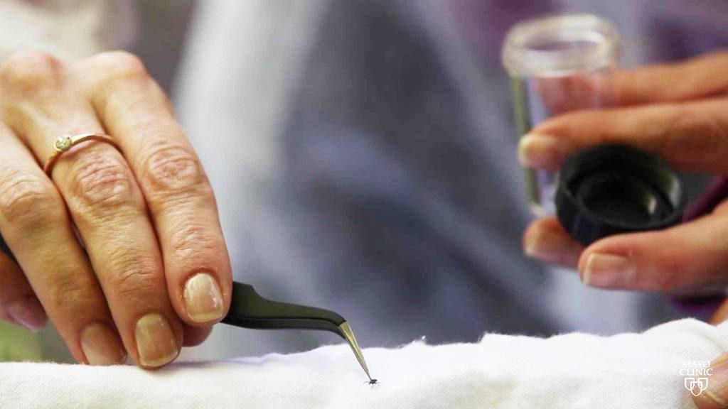 Las manos del investigador agarran una garrapata con pinzas