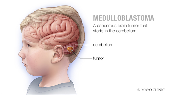 a medical illustration of medulloblastoma