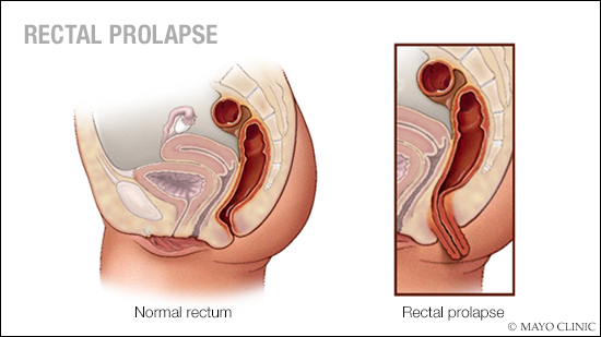 a medical illustration of rectal prolapse