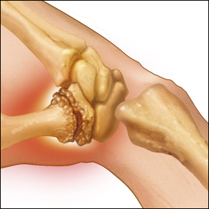 a medical illustration of thumb arthritis