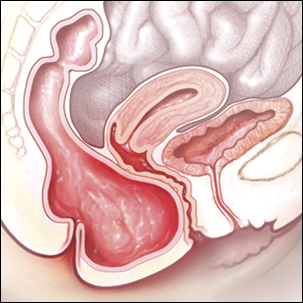 a medical illustration of a posterior vaginal prolapse