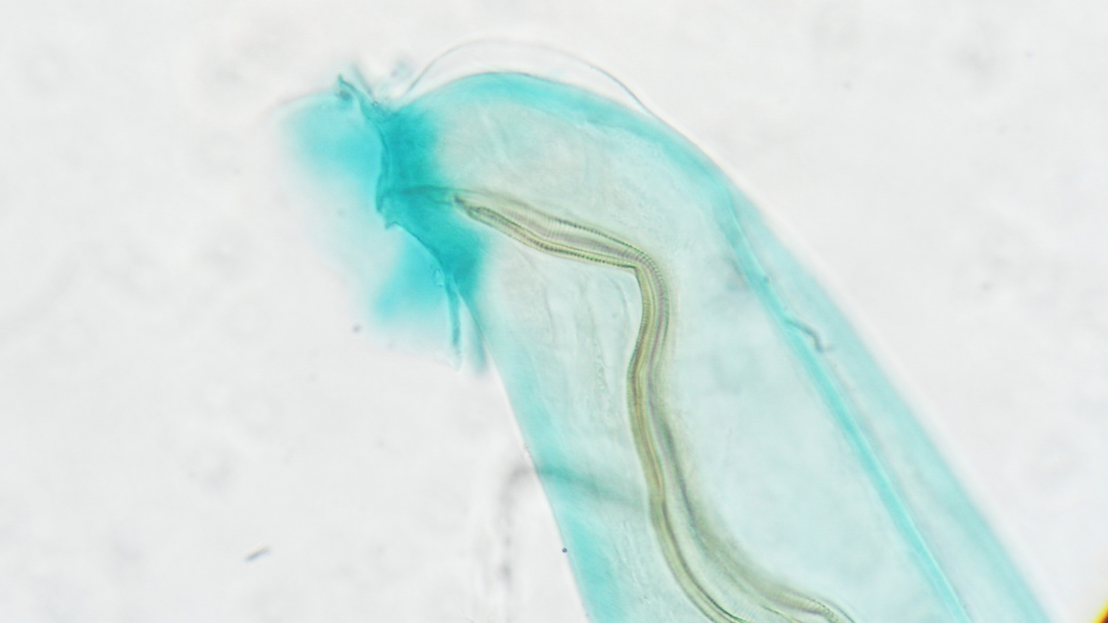 microscopic view of a parasite named Angiostrongylus cantonensis or rat lungworm, it's a round worm.