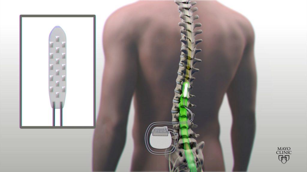 Ilustración del implante en la médula espinal
