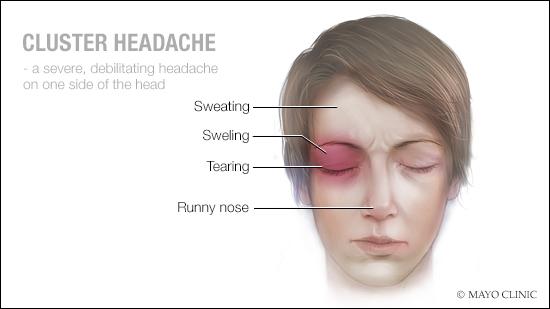 Ilustración médica de la cefalea en racimos