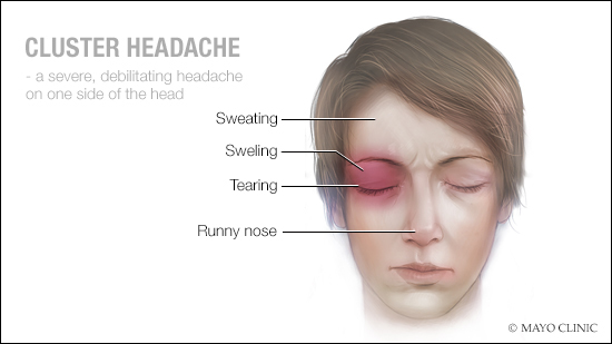 a medical illustration of cluster headache
