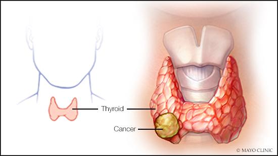 Preguntas y respuestas:  Tratamiento para cáncer tiroideo de células de Hürthle