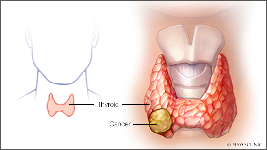 a medical illustration of thyroid cancer