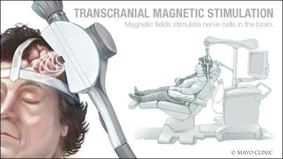 Ilustración médica de la estimulación magnética transcraneal