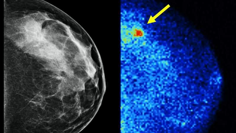 Molecular Breast Imaging (right) detected 3.6 times as many invasive cancers as digital mammography (left)