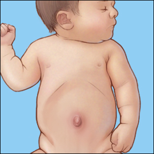 a medical illustration of an umbilical hernia in an infant