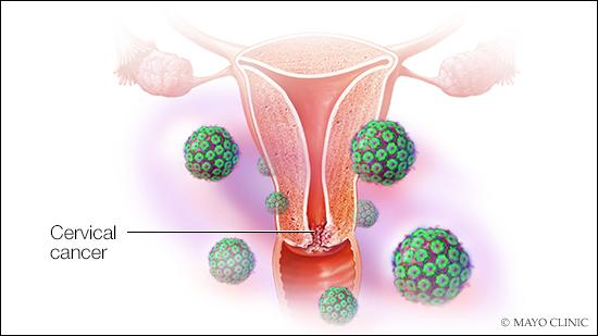 Ilustración médica del cáncer del cuello del útero