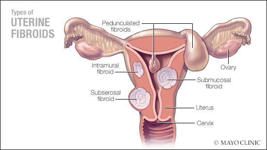 Study shows better outcomes for women treated for uterine fibroids with UAE