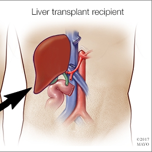 medical illustration of a liver transplant