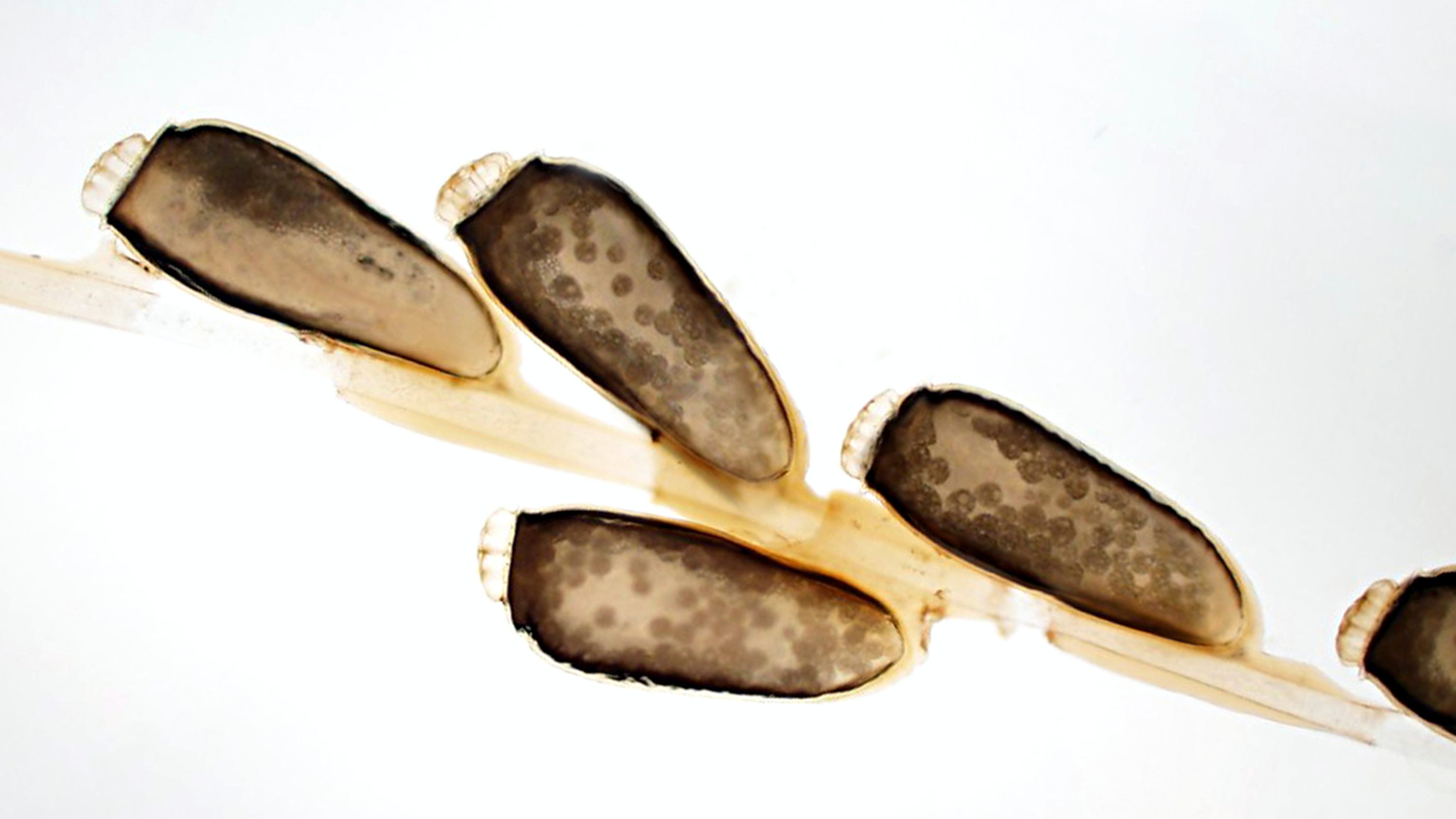 microscopic view of lice eggs on a strand of hair