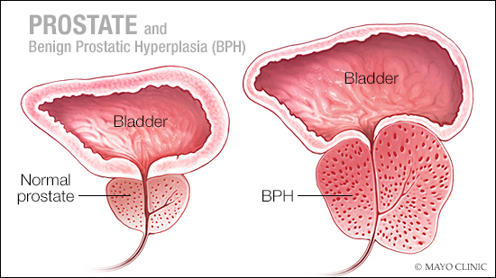 a medical illustration of a normal prostate and one with benign prostatic hyperplasia (BPH)