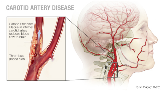 a medical illustration of carotid artery disease