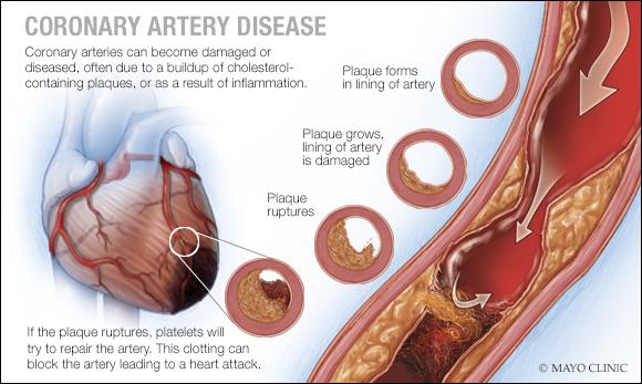 Ilustración médica de la arteriopatía coronaria