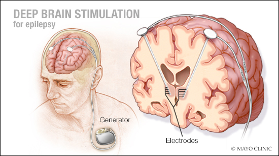 a medical illustration of deep brain stimulation for epilepsy