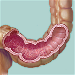 a medical illustration of inflammatory bowel disease