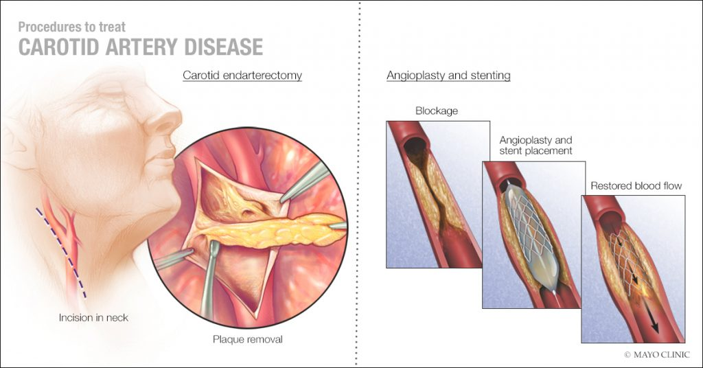 a medical illustration of procedures to treat carotid artery disease, including carotid endarterectomy and angioplasty and stenting