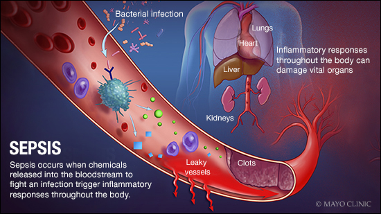 a medical illustration of sepsis