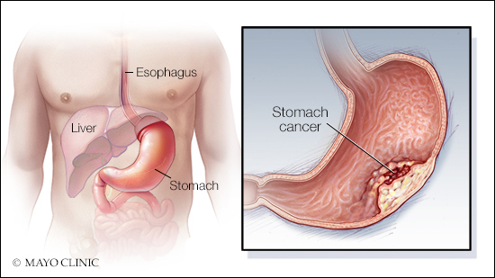 Living With Cancer: Understanding stomach cancer