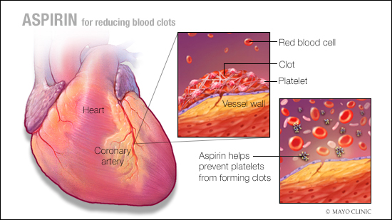 a medical illustration on using aspirin to reduce the risk of blood clots