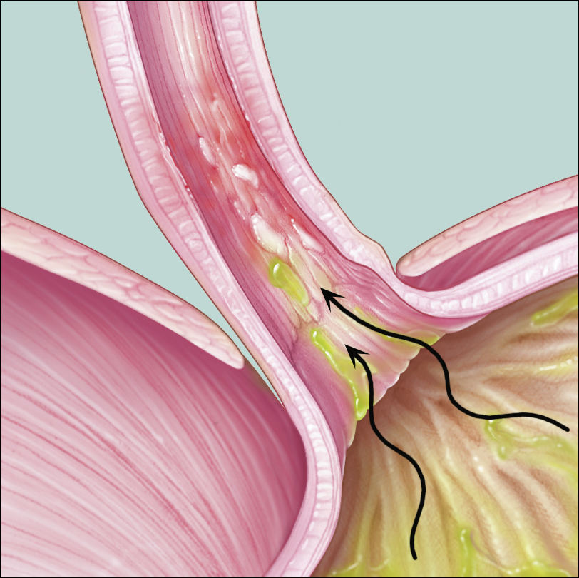 medical illustration of heartburn and GERD